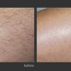 Palomar: Permanent Hair Removal