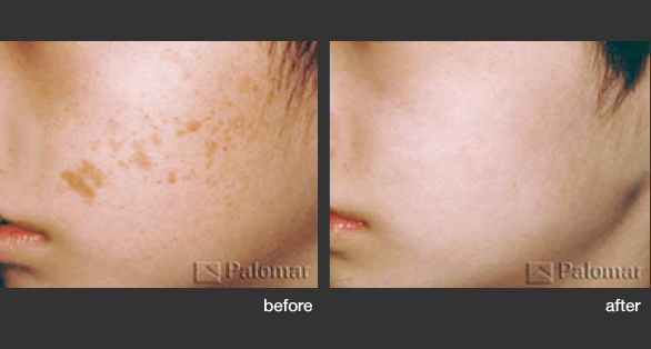 Laser Treatments L Arte Della Bellezza
