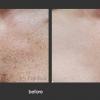 Palomar: Pigmented Lesions
