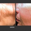 Palomar: Skin Resurfacing