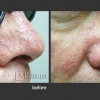 Palomar: Vascular Lesions and Rosacea