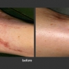 Palomar: Vein and Scar Removal